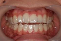 私、見えない歯列矯正はじめました!