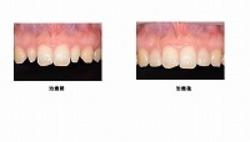 前歯のカタチ